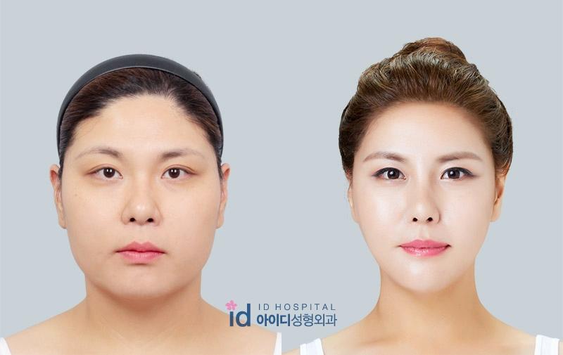 Пластические операции в Тайланде - изменение овала лица